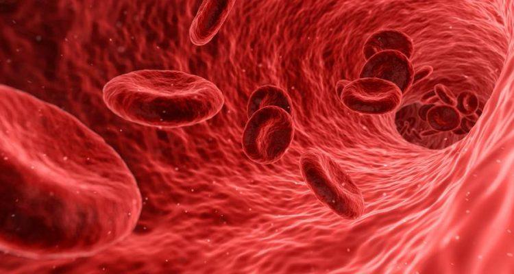 Cum se face tratamentul cheagurilor de sange?